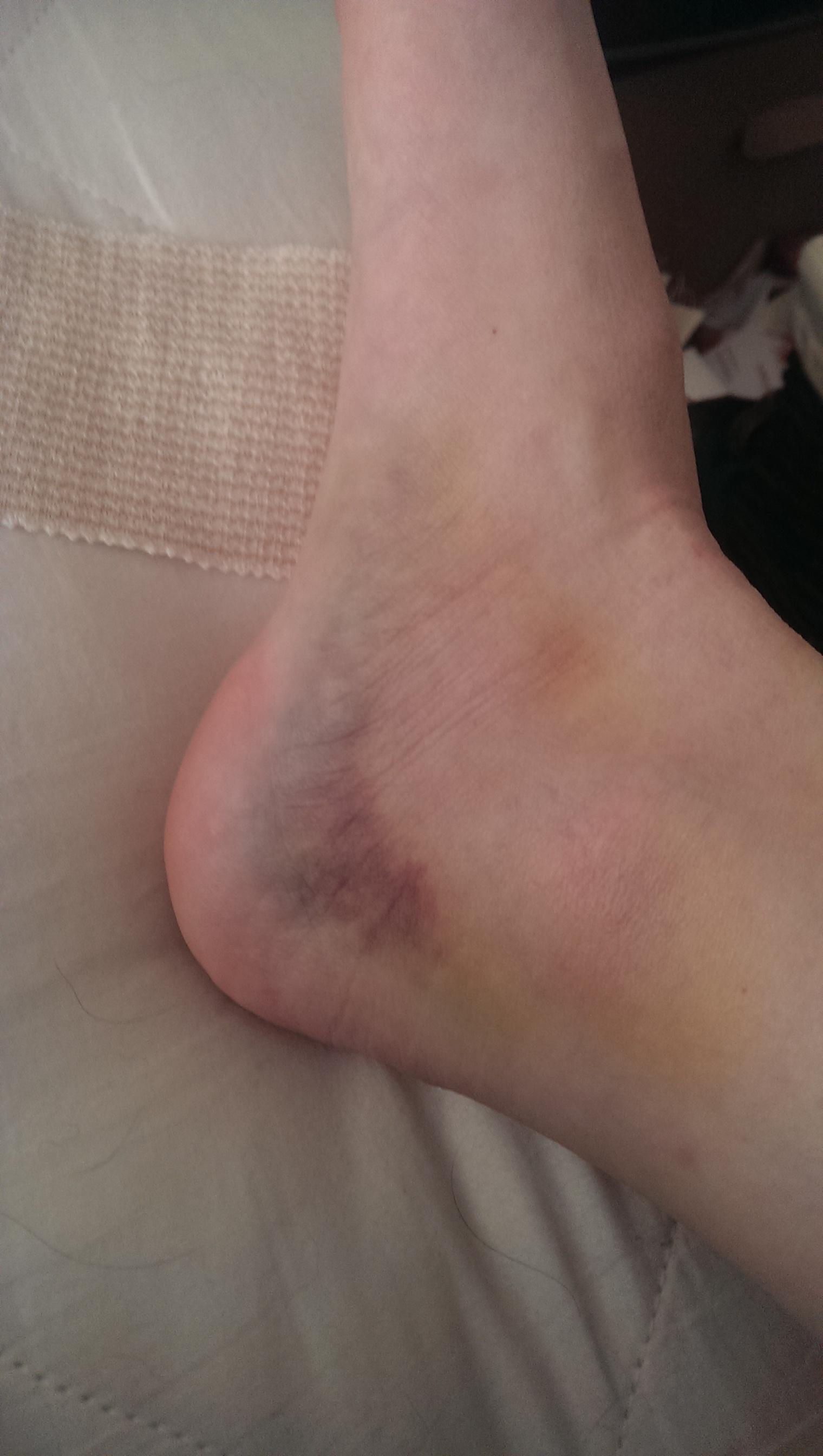 Ankle vs Step