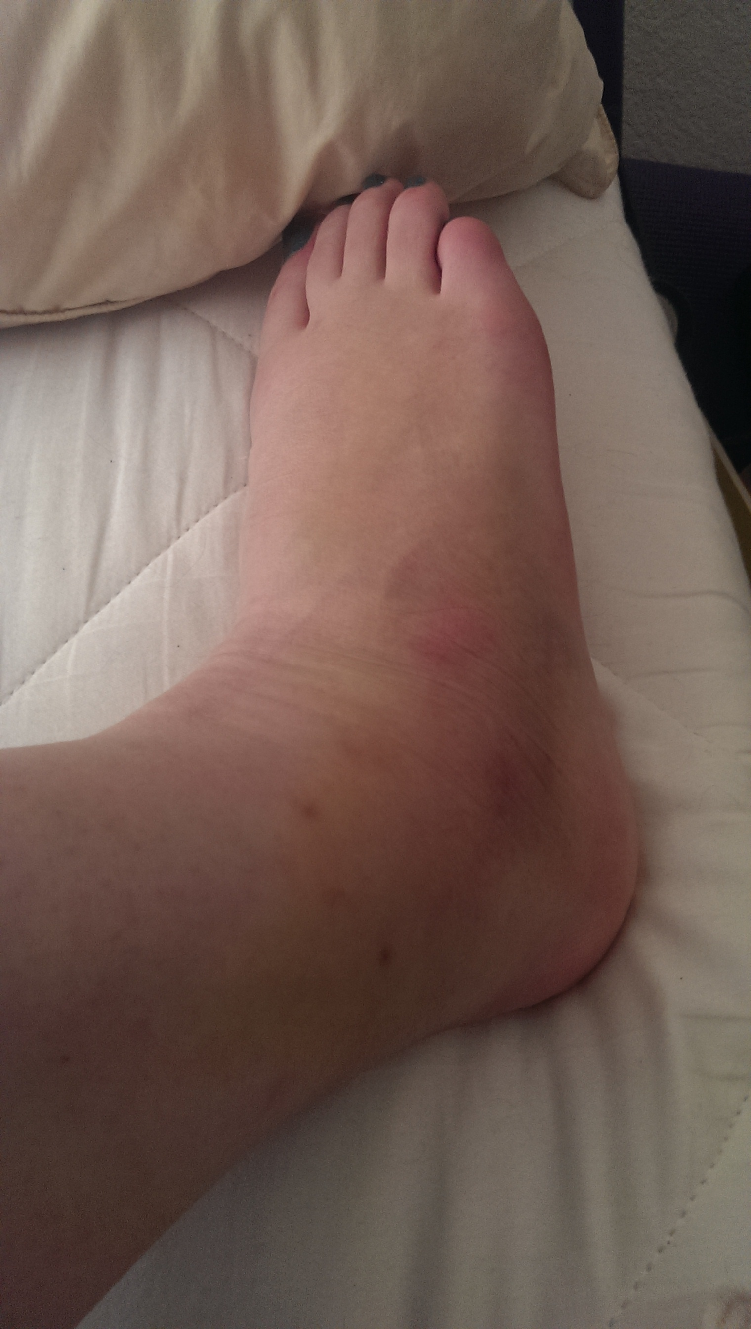 Cankle!