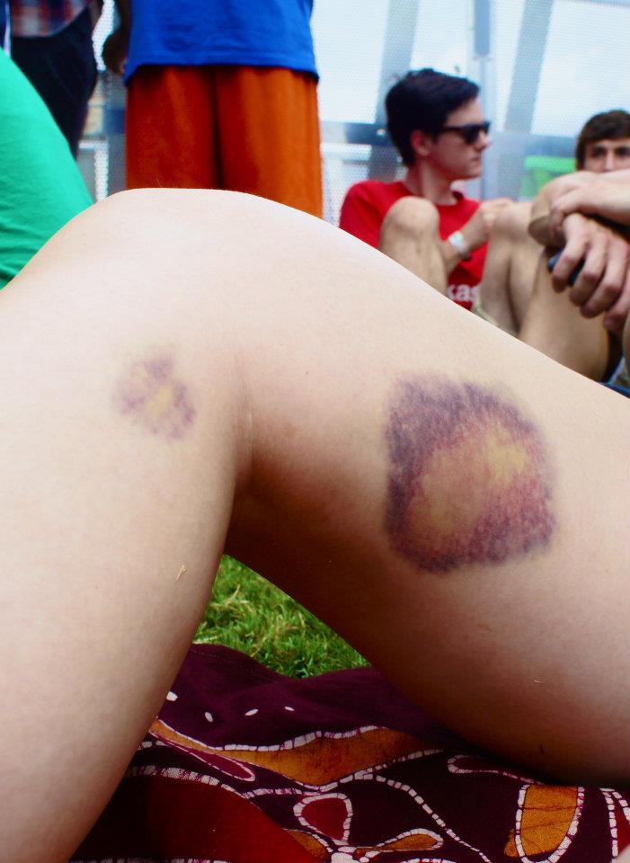 Leg vs. skate